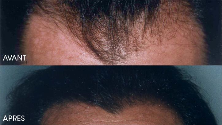 Le masque de platine pour les cheveux après la peinture