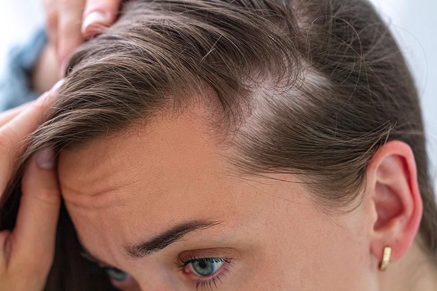 Greffe de cheveux de la femme. Clinique Capillaire Paris